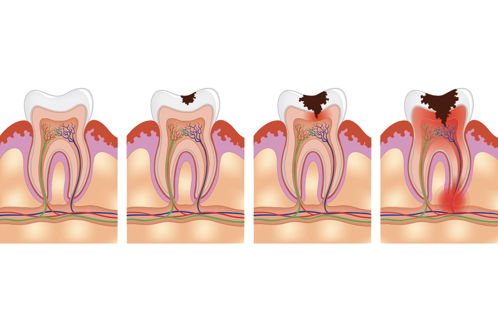 Conservativa - Studio dentistico associato Cerri