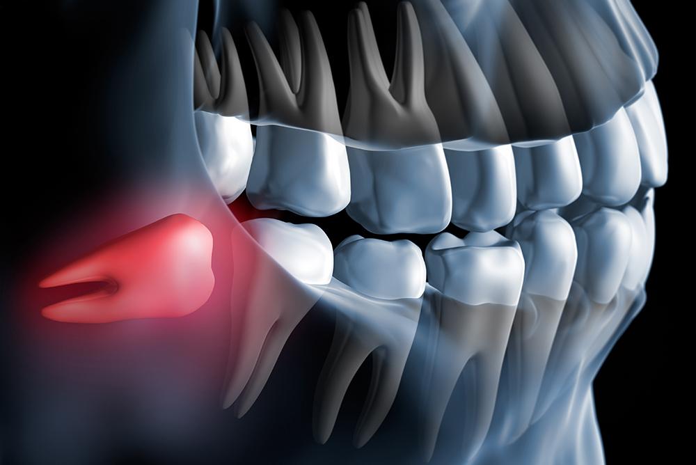 Chirurigia - Studio dentistico associato Cerri