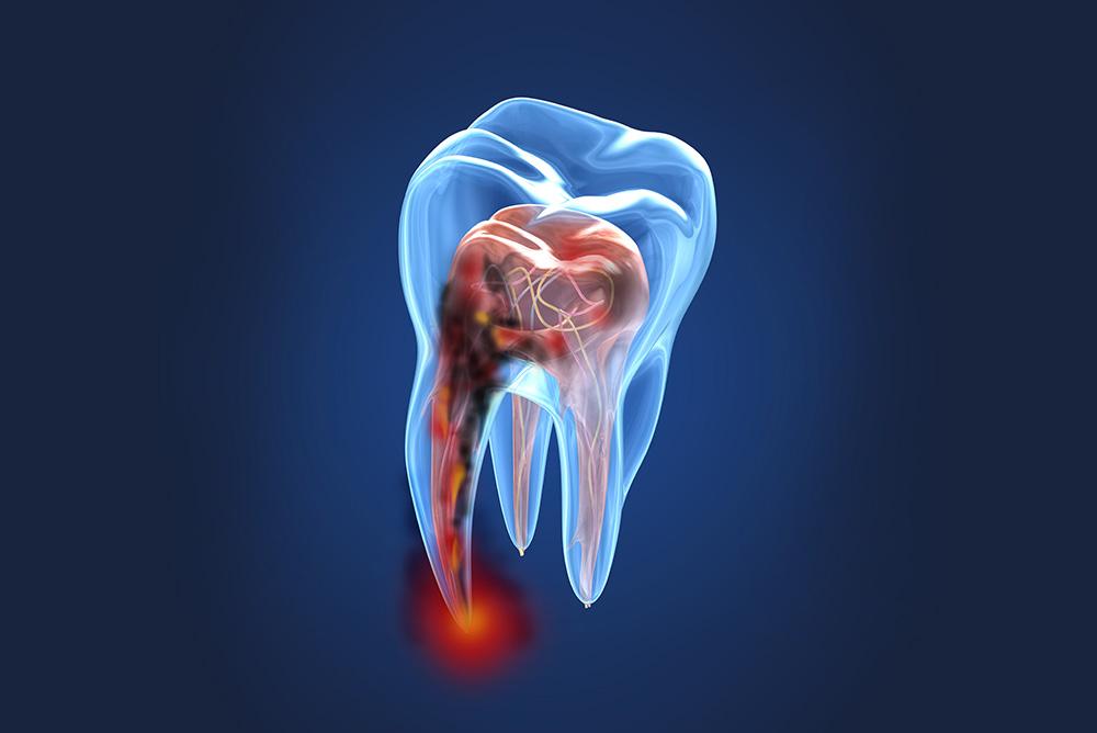 Endodonzia - Studio dentistico associato Cerri